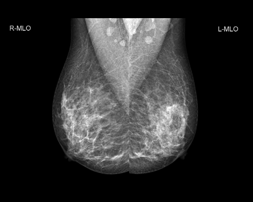 GENORAY Mammography MX-600