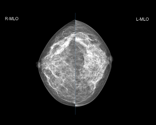 GENORAY Mammography MX-600 1